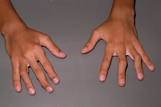 лечение артрита ихтиоловой мазью