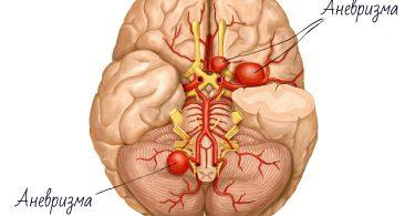 Аневризма головного мозга: последствия после операции, отзывы