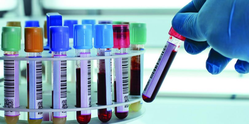 Как правильно сдавать анализ на гормон ЛГ?