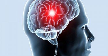 Ишемия головного мозга: лечение и симптомы
