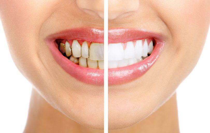 Как убрать зубной камень в домашних условиях быстро?