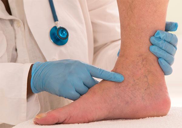 Признаки и лечение тромбоза глубоких вен нижних конечностей