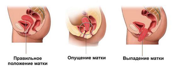 Опущение матки: симптомы и последствия, лечение
