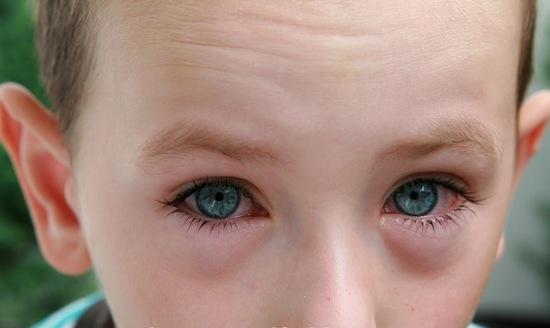 Очанка-трава: применение для глаз
