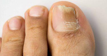 Народные средства от грибка ногтей