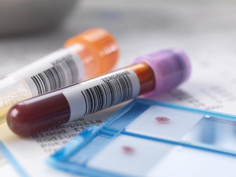 Что значат повышенные антитела к тиреопероксидазе?
