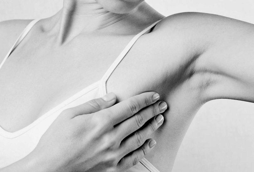 Чем лечить гидраденит под мышкой?