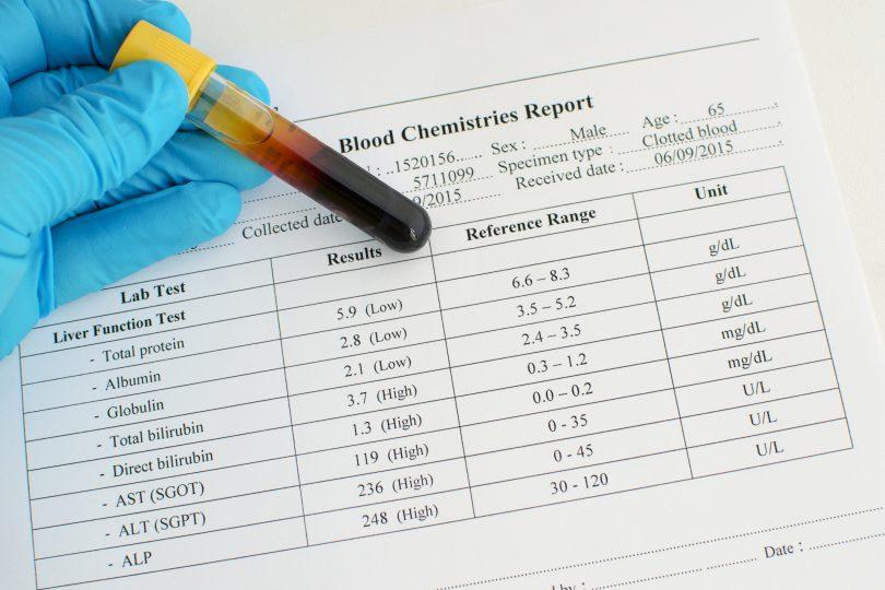 Как нормализовать уровень билирубина в крови?