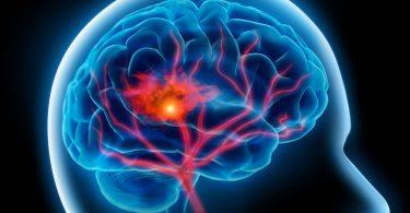 Можно ли укрепить сосуды головного мозга?