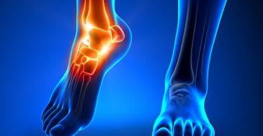 Реально ли укрепить суставы и связки?
