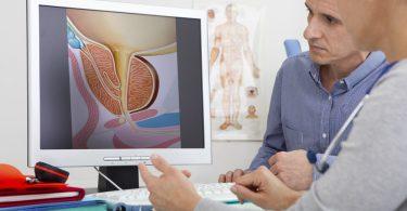 Как делают УЗИ предстательной железы?