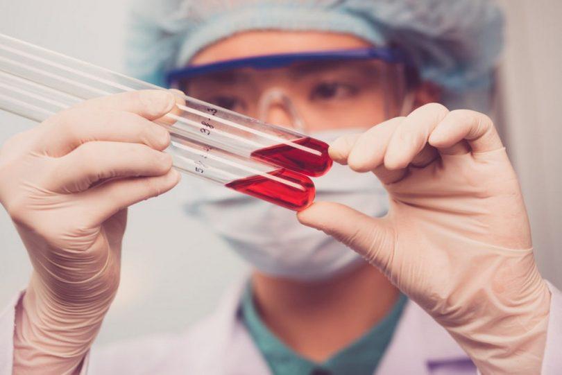 Что значит, если повышены эозинофилы в крови?