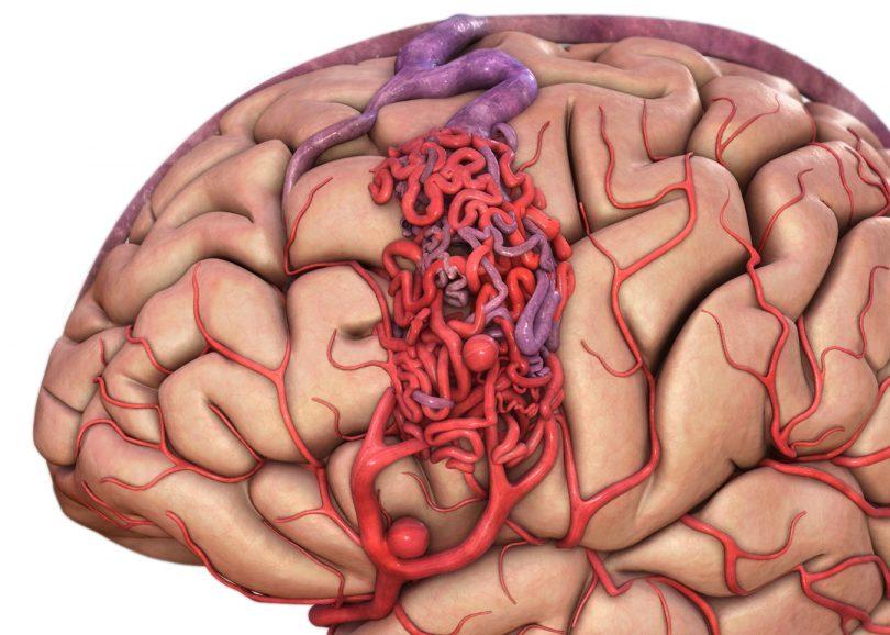 Лечится ли венозная ангиома головного мозга?