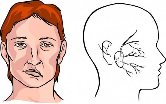 Инсульт правой стороны: последствия и методы лечения