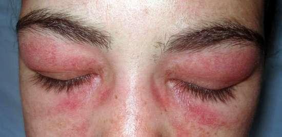 Отек Квинке у взрослых и детей: симптомы и лечение