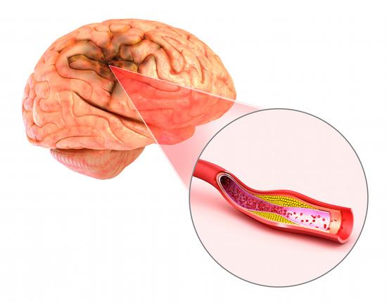 Чем отличается инсульт от инфаркта? Что хуже?